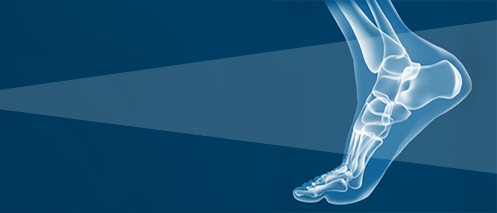 Foot & Ankle Specialty Spotlight: Ankle Instability